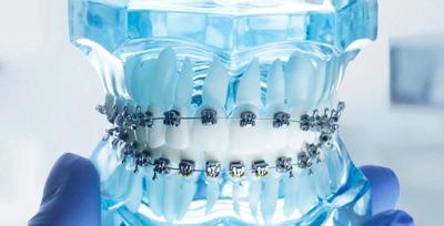 Имплантация зуба <br>под ключ